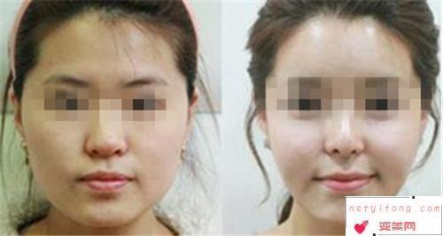 削骨瘦脸一个疗程是需要的市价是多少