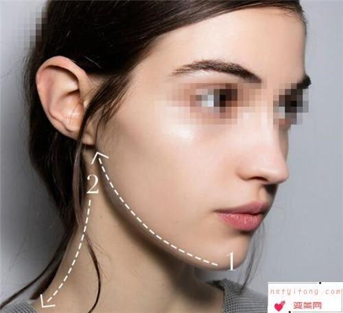 削骨瘦脸型一次手术需要有的开销