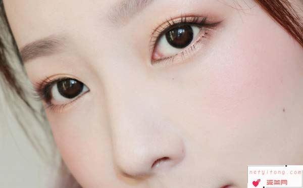 割双眼皮手术能够维持多长时间?术后有疤痕吗?