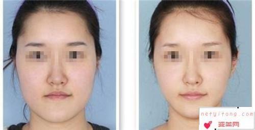 削骨瘦脸型总共需要花多少钱