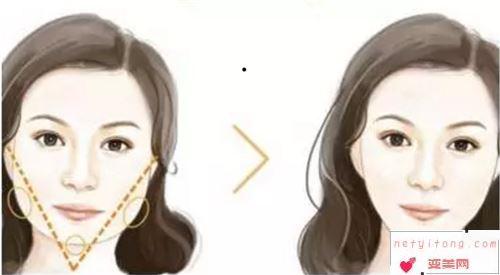 削骨瘦脸型一个疗程需要有多少钱?