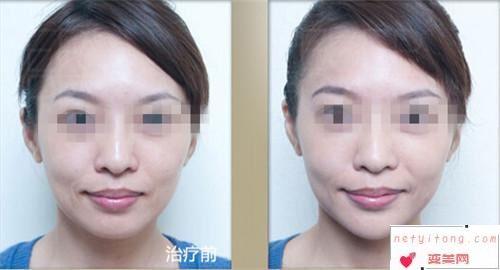 削骨瘦脸型最终是需要价格是多少