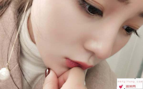 玻尿酸丰唇手术效果怎么样呢?