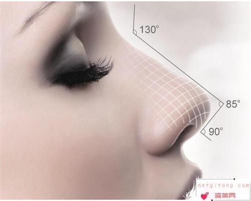 自体隆鼻手术小知识_假体隆鼻的适用人群是?