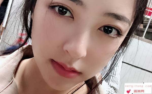 几种丰唇手术的方法?
