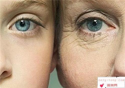 激光治疗范围之激光去除黑眼圈效果简单说明_哪一种黑眼圈能利用激光技术有效消除