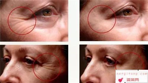 衰老标志黑眼圈分类型以及去除方案_各类黑眼圈有什么矫治方法可以除掉