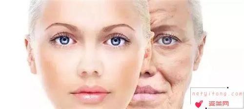眼部黑眼圈类别和去除办法_血管型黑眼圈一般有什么办法可抹去