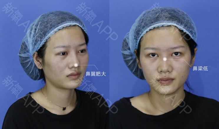 肋软骨隆鼻的手术过程是什么样的?-美白针副作用后遗症