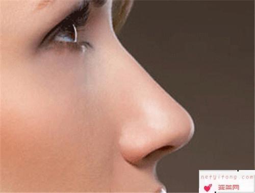 假体隆鼻的适合人群_哪类人适合采取注射隆鼻?