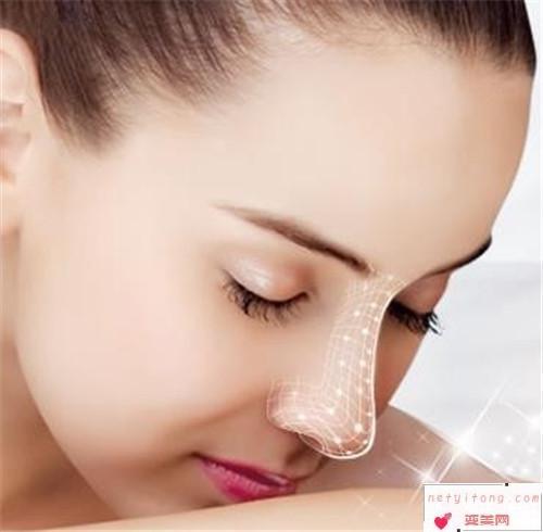 自体隆鼻手术小知识_假体隆鼻术的适应症