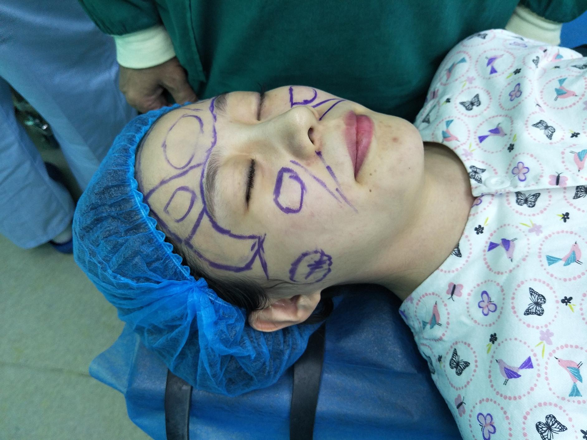 全脸脂肪填充手术过程,打造童颜减龄的效果!-大创胎盘素美白乳液