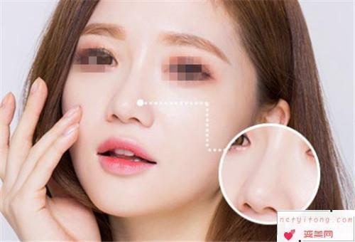 隆鼻术的注意事宜_隆鼻方法较适合什么人?