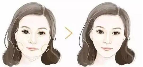 注射瘦脸,真的可以让不同脸型都能达到小脸效果
