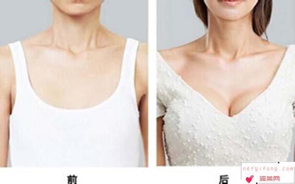 做自体脂肪隆胸整形手术要费用怎样