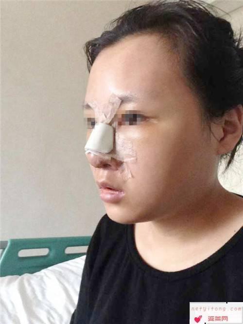 自体隆鼻手术的手术条件_做自体隆鼻手术的适应要求有些什么?