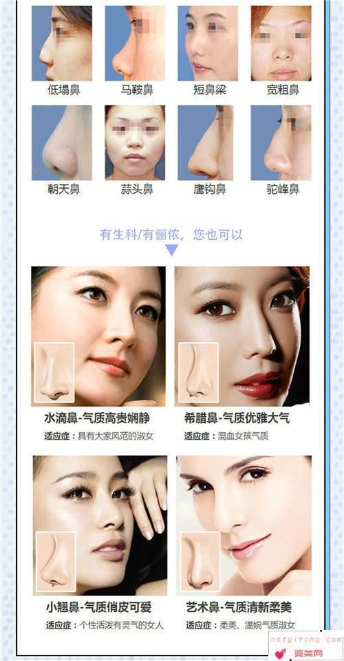 假体隆鼻手术的条件_采取隆鼻的手术要求有?
