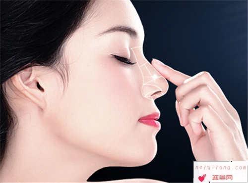自体隆鼻手术的注意事宜_隆鼻方式适合哪种人?