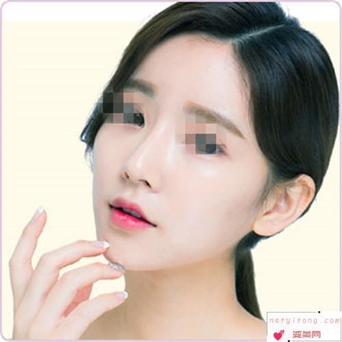 假体隆鼻手术的适应症_哪类人可以去假体隆鼻?