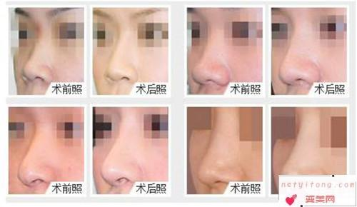 隆鼻手术的注意事项_隆鼻方式更适合哪种人?