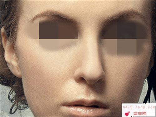 隆鼻小知识_假体隆鼻的适用人群是?