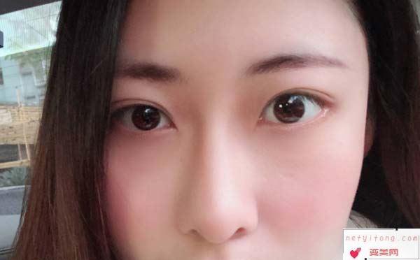 吸脂祛眼袋手术的注意事项有哪些呢?