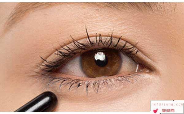 割双眼皮手术多久才可以拆线?