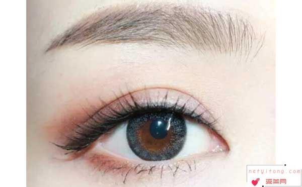 割双眼皮术后多久能恢复?