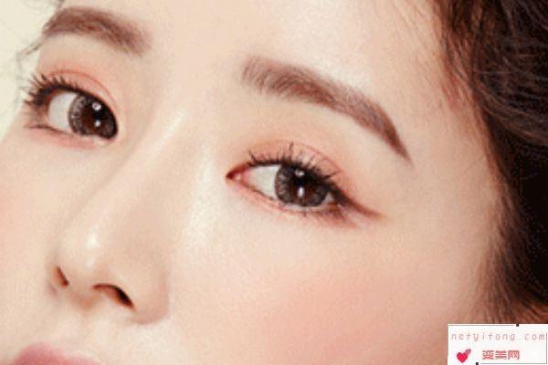 做韩式双眼皮手术效果自然吗?