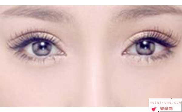 割双眼皮会留下疤痕吗?