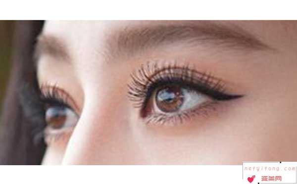 割双眼皮术后应该注意什么?