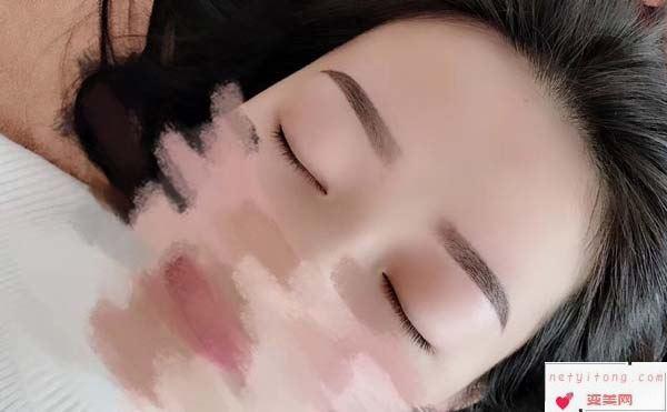 哪些人不适合做纹眉手术?