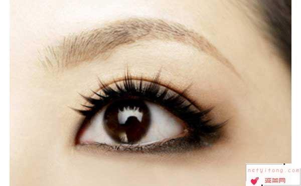 哪些因素会导致双眼皮手术失败?