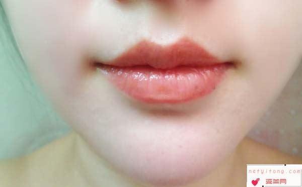 纹唇手术的后遗症有哪些呢?