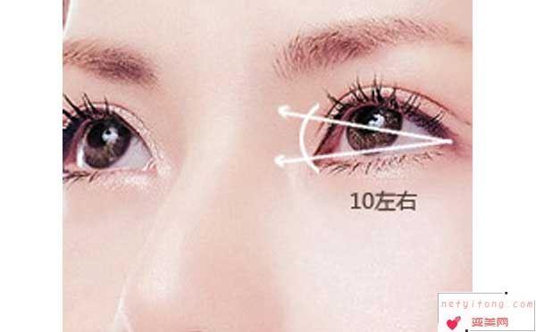 韩式切开双眼皮多长时间回复自然?