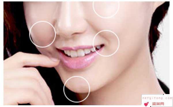 吸脂瘦脸术后会出现肿胀吗?
