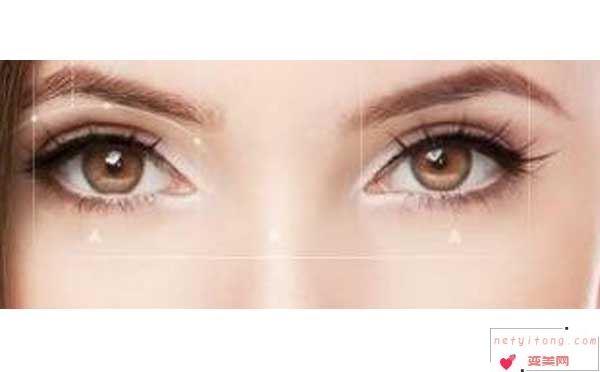 割双眼皮术后要多长时间才能恢复?