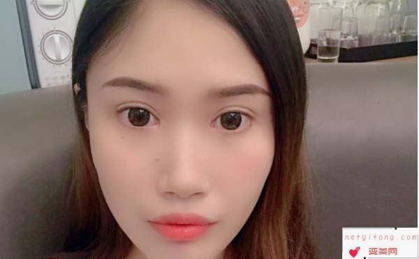 韩式双眼皮手术的优势有哪些?手术术后的注意事项又有哪些?