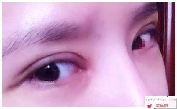 双眼皮失败有哪些因素?