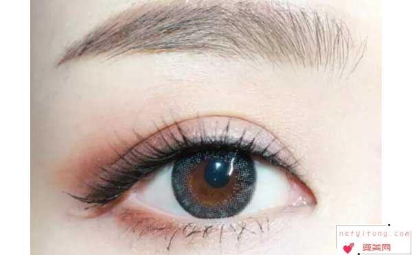 那种双眼皮手术恢复的比较快?