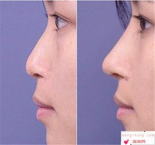 做硅胶肋骨隆鼻手术治疗的价格要多少钱呢