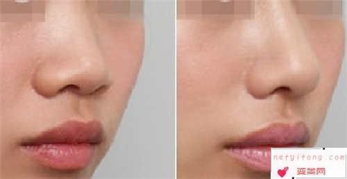 做自体软骨鼻部整形的价格表