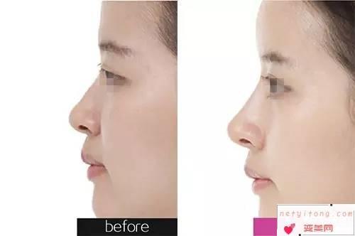 硅胶肋骨隆鼻医学美容效果到底好不好