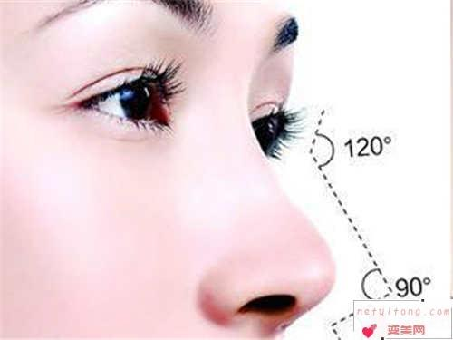 假体隆鼻术前常识_假体隆鼻的适应人群是?