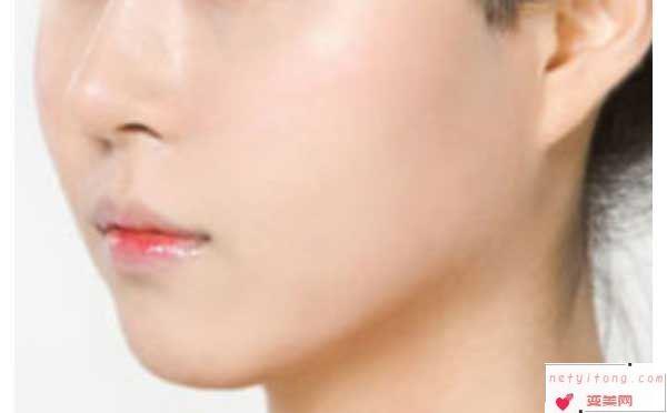 面部脂肪填充效果可以维持多久?