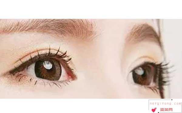 眼皮下垂可以做切开双眼皮吗?