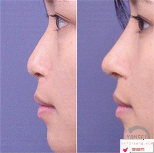 人工骨隆鼻疗效如何