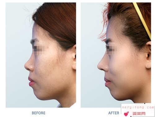 做膨体硅胶隆鼻效果好吗