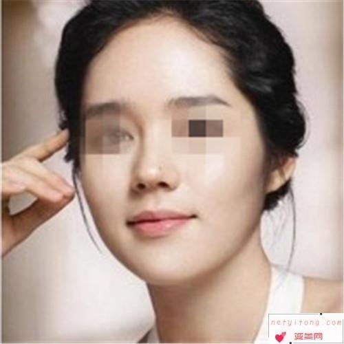 假体隆鼻知识_假体隆鼻的适应症是?
