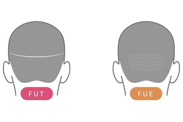 微创种植头发手术多少钱-植发靠谱吗新生榜首